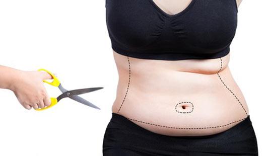 Fettabsaugen und Bauchstraffung als Schönheits-OP beliebt