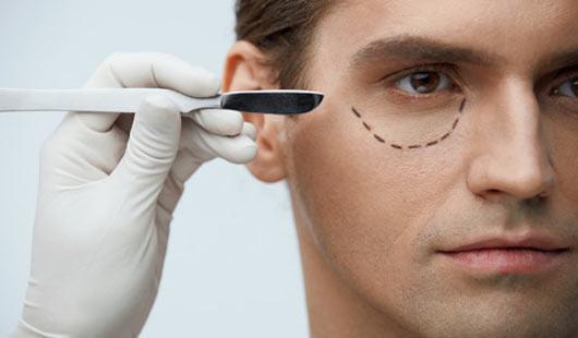 Augenlidkorrektur als Schönheits-OP beliebt